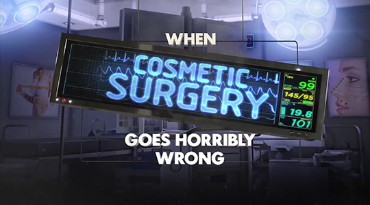 When Cosmetic Surgery Goes Horribly Wrong