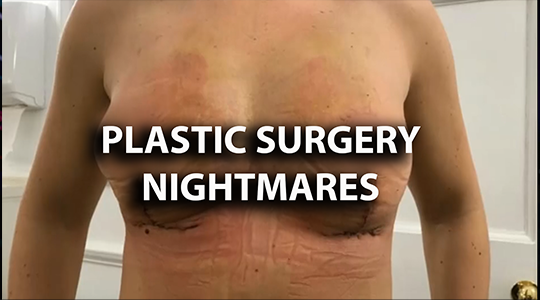 Plastic Surgery Nightmares